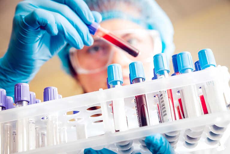 chi phí xét nghiệm viêm gan b
