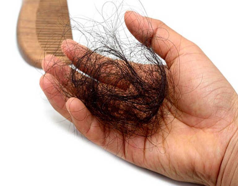 Hiện tượng rụng tóc do tác dụng phụ từ thuốc kháng virus viêm gan B
