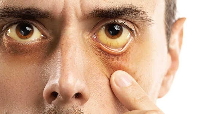 Những biểu hiện của viêm gan B giai đoạn cuối, người bệnh sống được bao lâu?