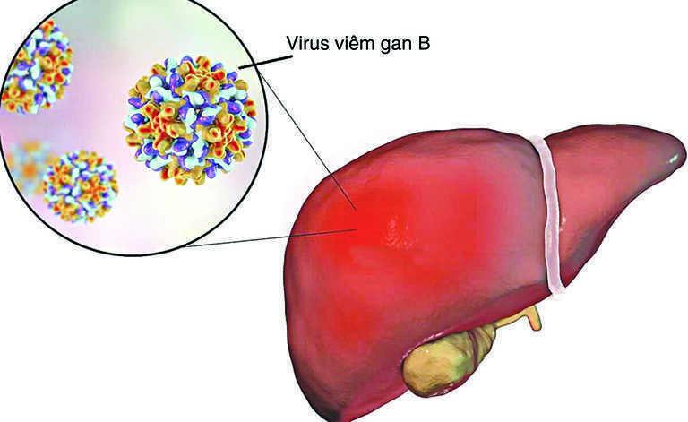 Viêm gan B mãn tính rất nguy hiểm