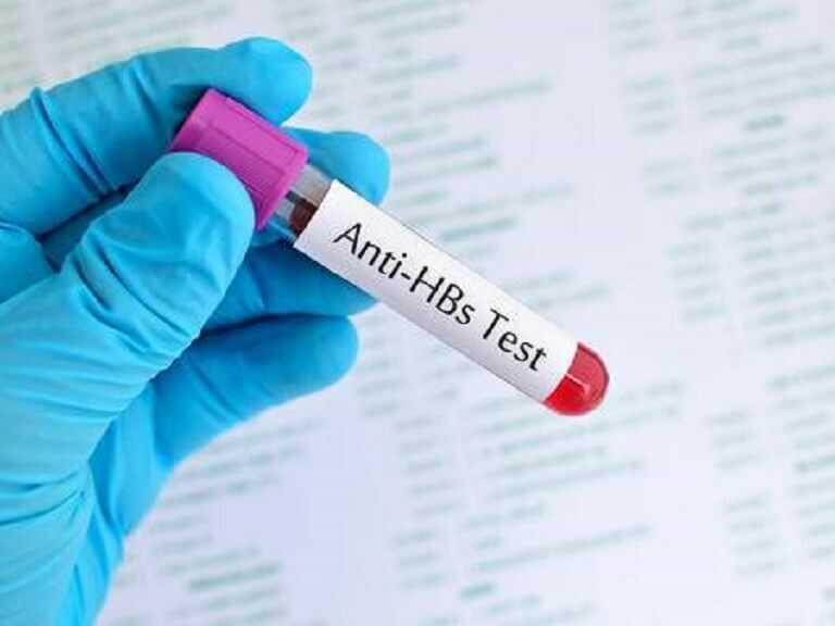 Giải đáp thắc mắc: Xét nghiệm viêm gan B có phát hiện HIV không?