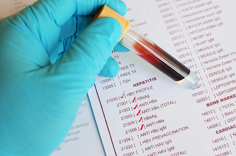 kiểm tra hệ miễn dịch