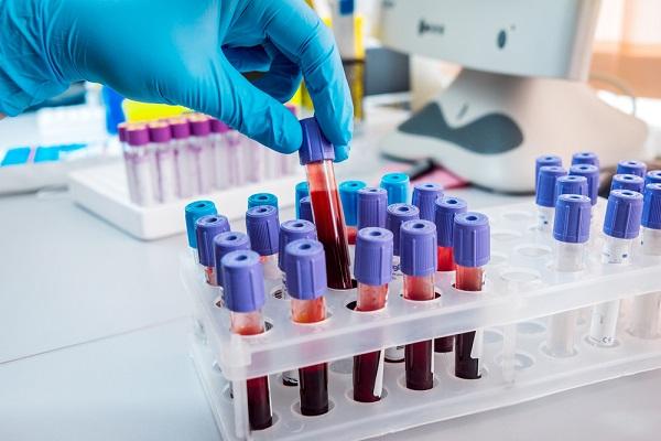 Hướng dẫn chi tiết cách xem kết quả xét nghiệm viêm gan B