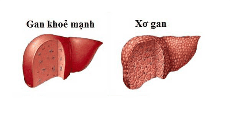 Xơ gan là biến chứng của viêm gan