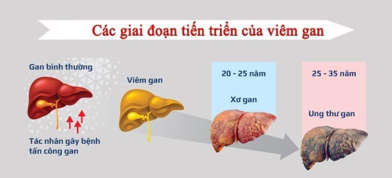 Hoảng hốt với tác hại và biến chứng của bệnh viêm gan B