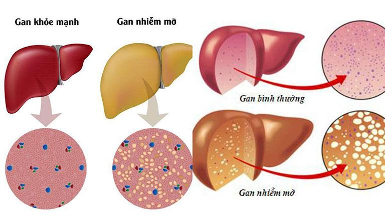 Gan nhiễm mỡ là gì? Nguyên nhân, dấu hiệu nhận biết và điều trị