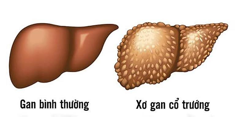 Bài thuốc nam chữa bệnh xơ gan cổ trướng