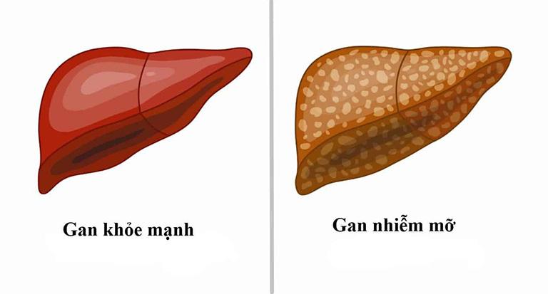 Bệnh gan nhiễm mỡ có nguy hiểm không?