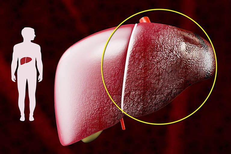 Bệnh xơ gan cổ trướng có lây không?