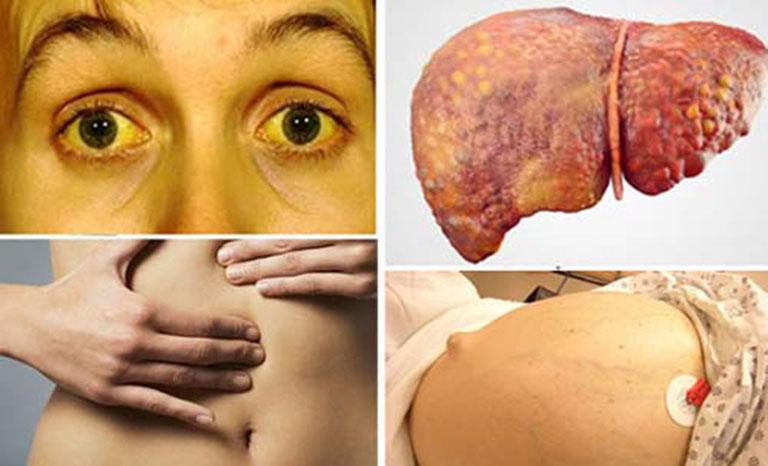 Bệnh xơ gan cổ trướng (giai đoạn cuối)