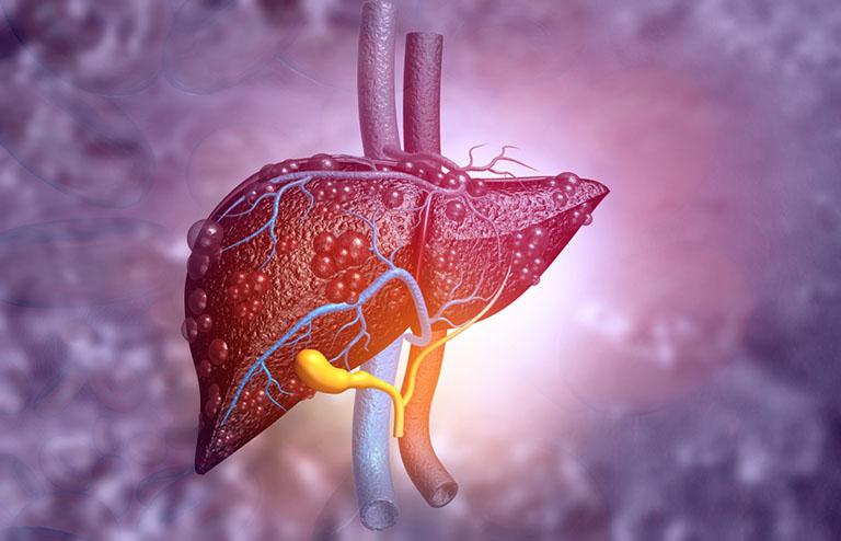 công dụng chữa bệnh gan nhiễm mỡ của cây an xoa