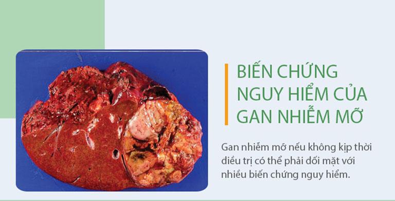 Gan nhiễm mỡ có thể gây nhiều biến chứng nguy hiểm