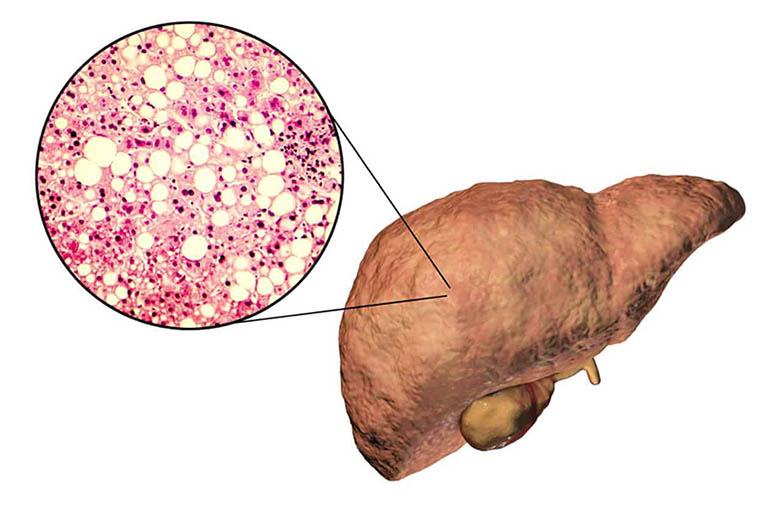 Gan nhiễm mỡ nặng có nguy hiểm không? Điều trị thế nào?