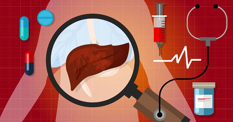 phương pháp xét nghiệm gan nhiễm mỡ