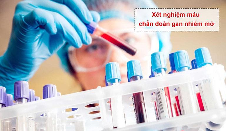 Các phương pháp xét nghiệm gan nhiễm mỡ phổ biến hiện nay