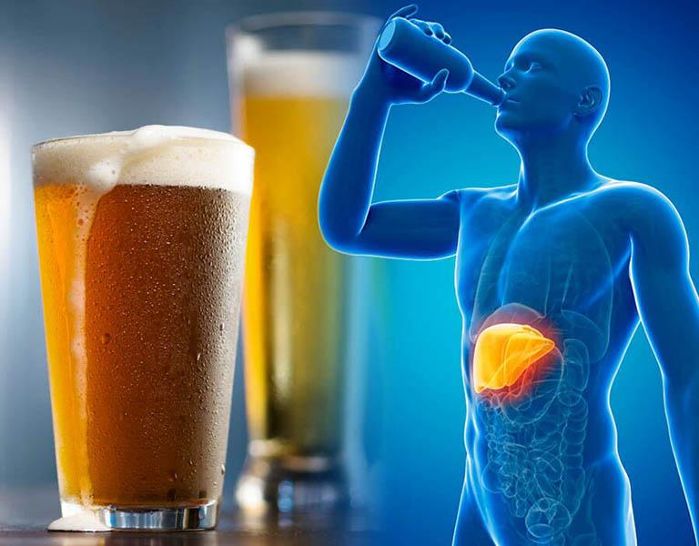 Uống nhiều rượu bia dễ bị gan nhiễm mỡ và xơ gan